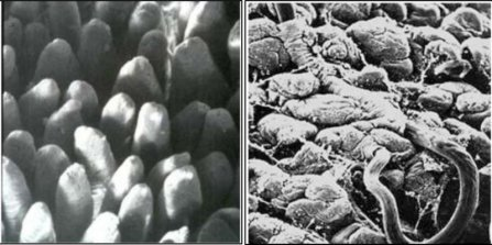 Image: (Left) Normal surface of the small intestine (Right) The wall of the small intestine damaged by black scour worm (Source: Dr Ian Beveridge, University of Melbourne)